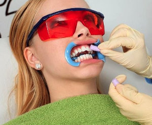 Описание процедуры отбеливания зубов по системе Klox и ее плюсы