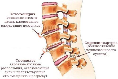 Остеохондроз дугоотростчатых суставов артрозо-артрит левого голеностопного сустава